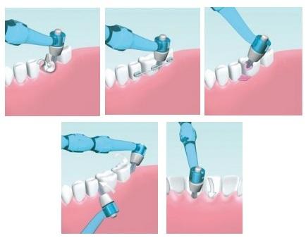 Насадки для зубов