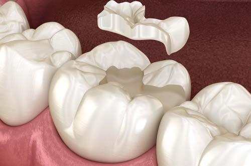 Зубні бломби