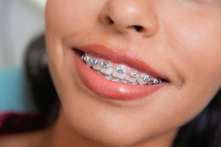 Гігієна зубів з брекет-системою 7238d03861c82