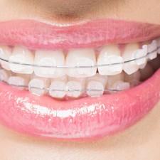 Чищення зубів з брекетами