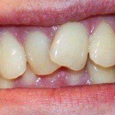 Криві зуби: чому, як, що робити