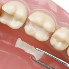 Зубные пломбы, какие лучше?