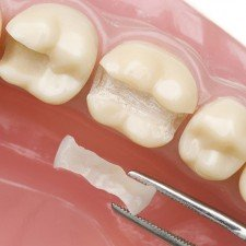 Зубні пломби. Які краще?