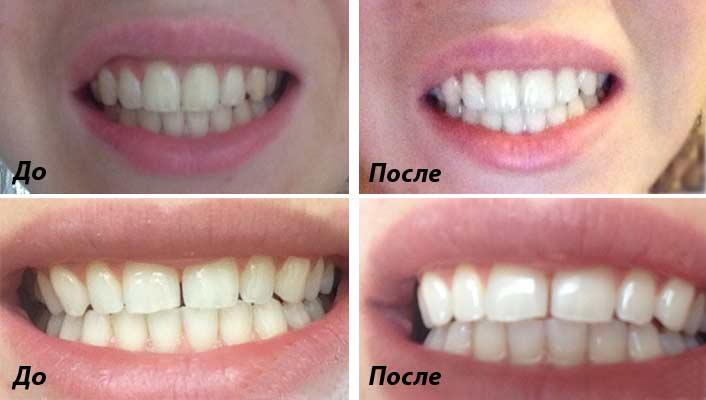 Відбілювання зубів в дома. Дієвий метод. b5a77d442d8f9